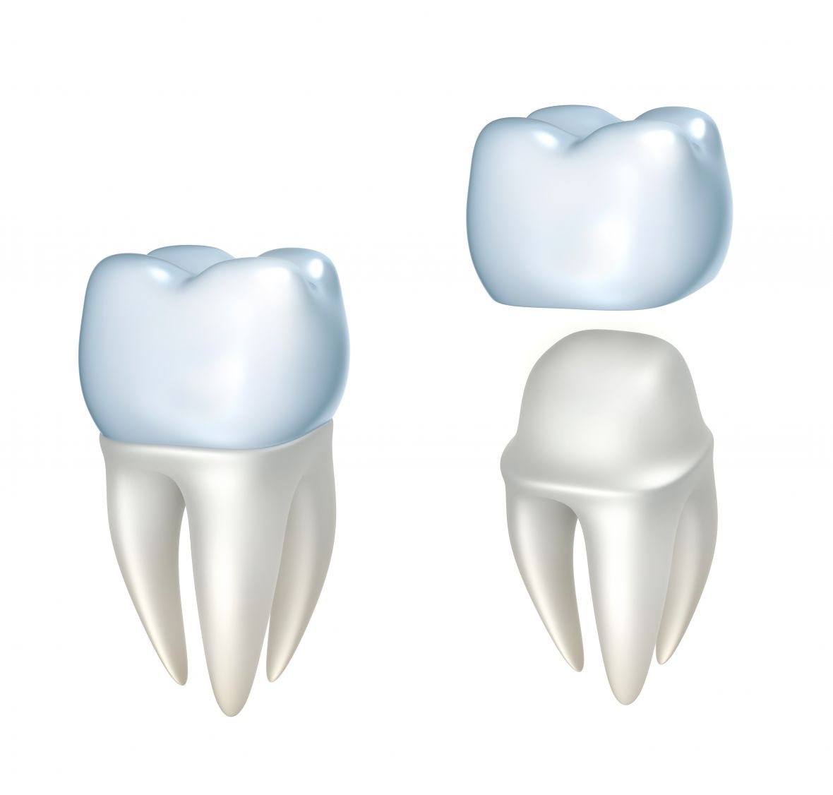 Dental Crowns Bedell Florenceville Clinic