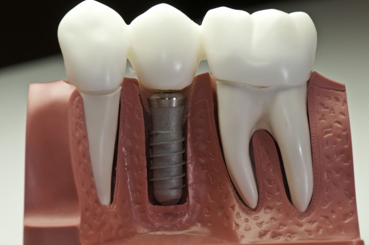 Dental Implants Carleton Dental Bedell NB